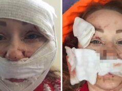 Bakırköy'de eşinin yüzünü falçatayla yaralayan şüpheli tutuklandı